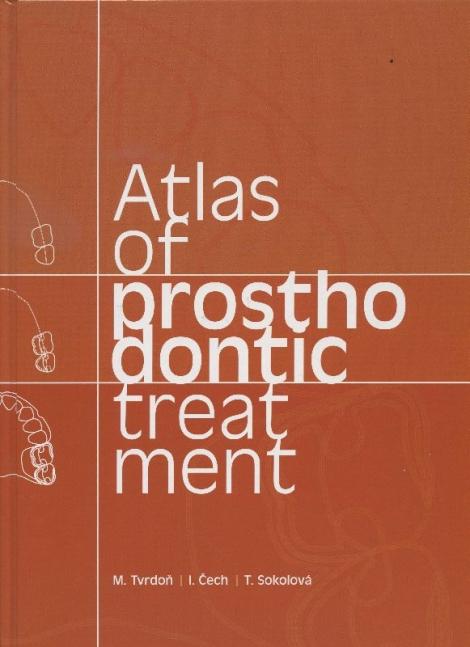 Atlas of prosthodontic treatment -