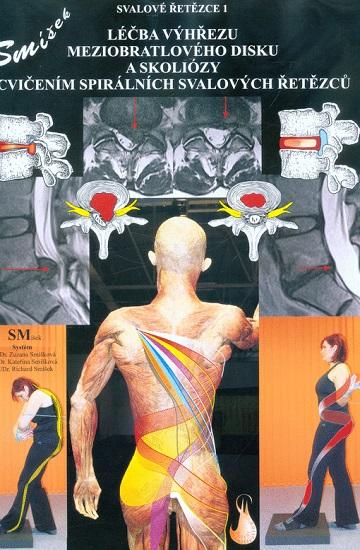 Léčba výhřezu meziobratlového disku a skoliózy cvičením spirálních svalových řetězců