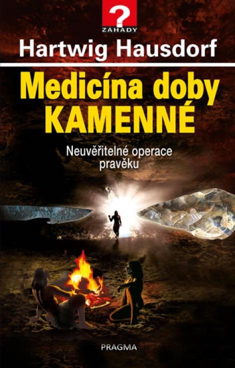 Medicína doby kamenné - Neuvěřitelné operace pravěku
