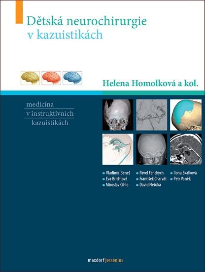 Dětská neurochirurgie v kazuistikách