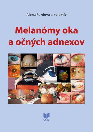 Melanómy oka a očných adnexov