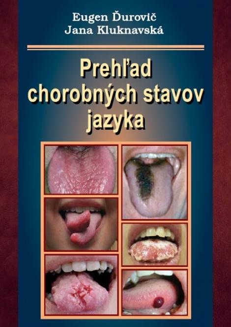 Prehľad chorobných stavov jazyka -
