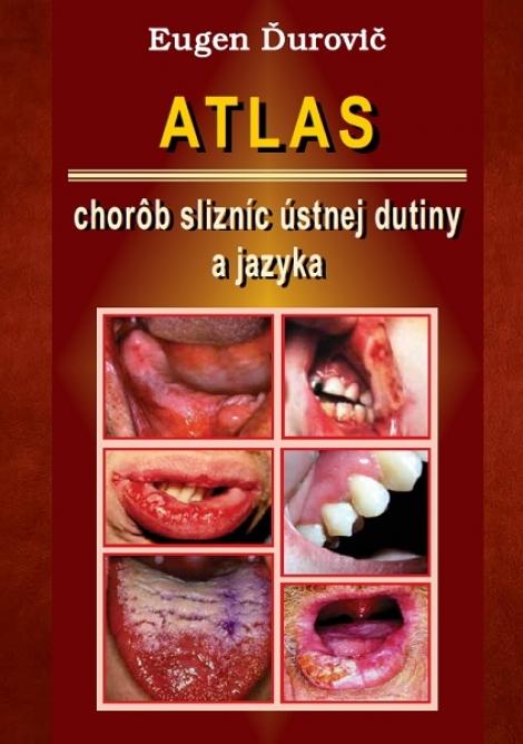Atlas chorôb slizníc ústnej dutiny a jazyka -
